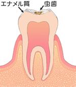 歯の表面(エナメル質)のむし歯