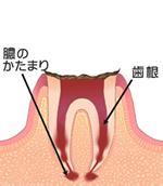 歯の根まで進行したむし歯