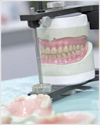 入れ歯義歯治療